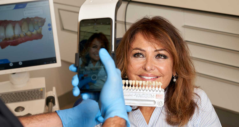 Cómo mejorar la estética dental